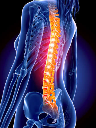 medically accurate 3d illustration of the painful spine