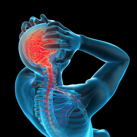 medically accurate 3d illustration of headache/ migraine Stock fotó