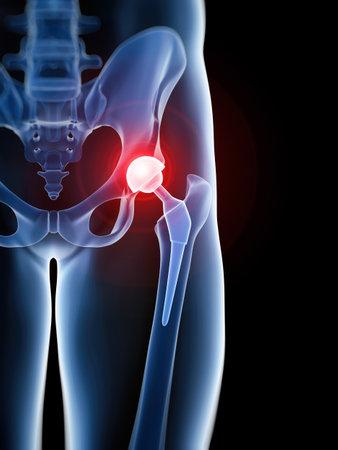 medico accurato illustrazione 3D della protesi d'anca