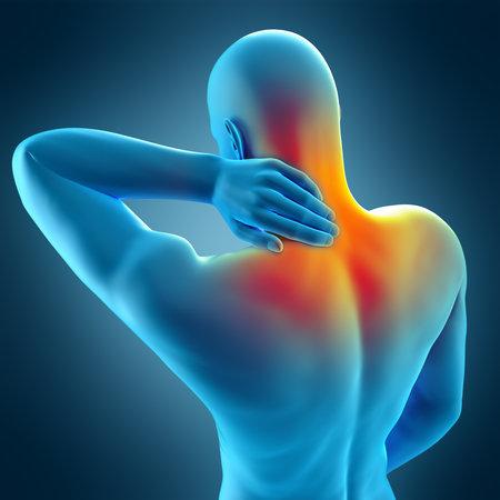 medisch nauwkeurige 3D-afbeelding van de pijn in de nek