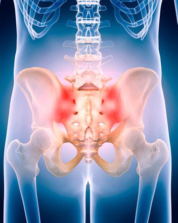 痛みを伴う股関節の医学的に正確な 3 d イラスト