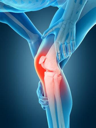 medisch nauwkeurige 3D-afbeelding van kniepijn Stockfoto