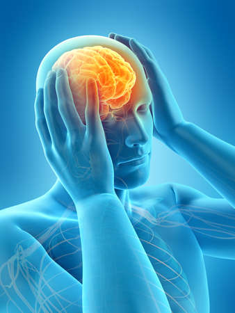 medically accurate 3d illustration of headache migraine