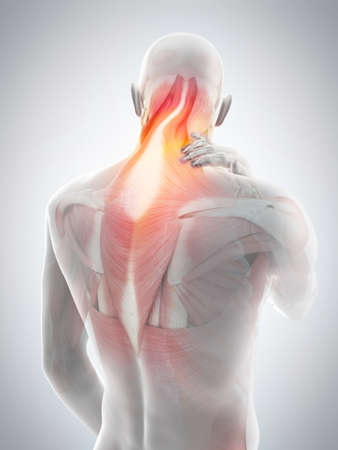 medically accurate 3d illustration of neck pain