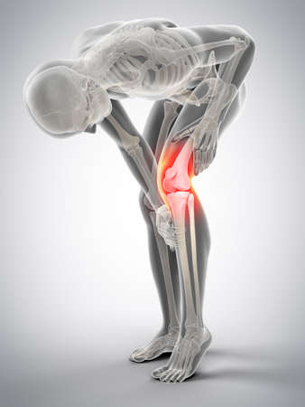 medically accurate 3d illustration of knee pain