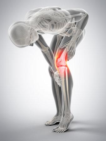 Medico accurato 3d illustrazione del dolore al ginocchio Archivio Fotografico - 58780578