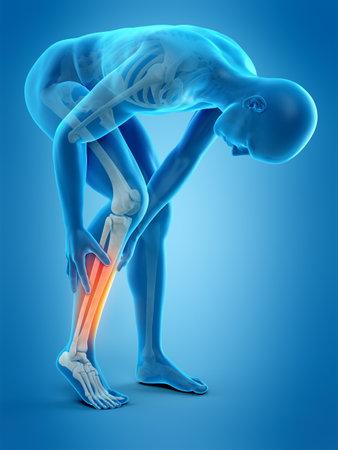 Médicamente exacta 3d ilustración de dolor en la pantorrilla Foto de archivo - 58802119