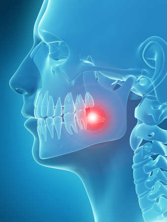 medically accurate 3d illustration of painful tooth