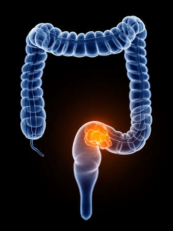 3d rendered, medically accurate illustration of colorectal cancer Stockfoto