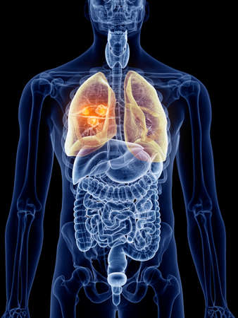 3d rendered, medically accurate illustration of lung cancer Stock Photo