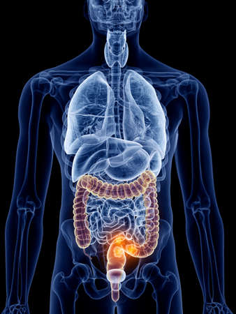 3d rendered, medically accurate illustration of bowel cancer Standard-Bild