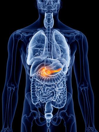 췌장암의 3D 렌더링, 의학적으로 정확한 그림 스톡 콘텐츠
