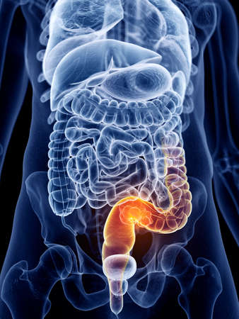 3d rendered, medically accurate illustration of bowel cancer Imagens