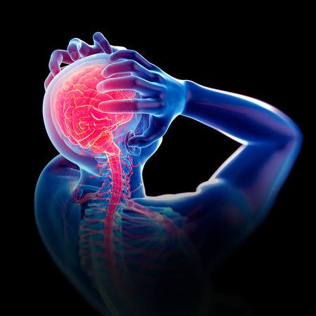 의학적으로 정확한 두통  편두통의 3d 일러스트