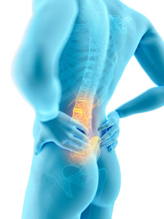 3d rendered medically accurate illustration of a man with backache Stock Photo