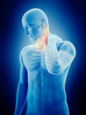 medizinisch genaue 3D-Darstellung von Nackenschmerzen