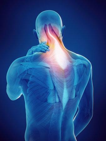 의학적으로 정확한 목에 통증이있는 남자의 3D 렌더링 스톡 콘텐츠 - 86215965