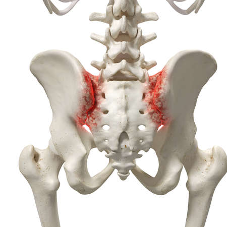 3d rendered medically accurate illustration of an arthritic sacrum Stock Photo