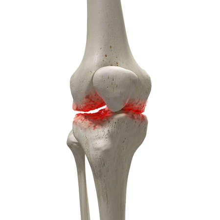 3d teruggegeven medisch nauwkeurige illustratie van een artritische knie
