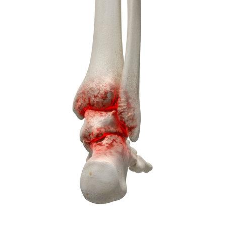 관절염 발목의 3d 렌더링 된 의학 정확한 그림
