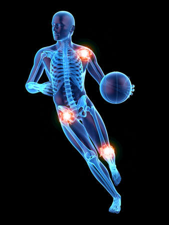 3D 렌더링 된 의학적으로 고통스러운 관절을 가진 남자의 정확한 그림