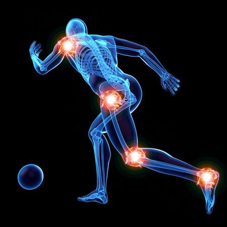 3d übertrug medizinisch genaue Illustration des Mannes mit schmerzlichen Verbindungen Standard-Bild