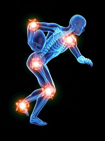 3d ha reso l'illustrazione medicamente accurata dell'uomo con le articolazioni dolorose Archivio Fotografico - 86900048