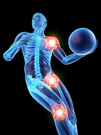 3d rendu médicalement précis illustration de l'homme avec des articulations douloureuses Banque d'images - 86900053