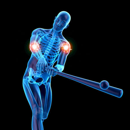 3d rendered medically accurate illustration of man with painful joints