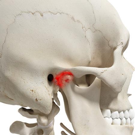 관절염 하악 관절의 3D 렌더링 된 의학적으로 정확한 그림 스톡 콘텐츠