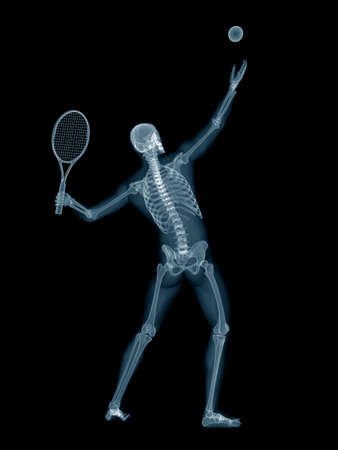 3d rendered medically accurate illustration of tennis player Stock Photo