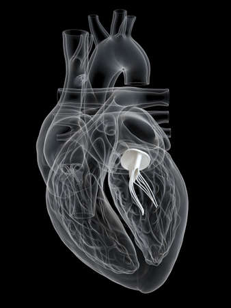 3d rendered medically accurate illustration of the mitral valve