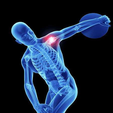 3d rendered, medically accurate illustration of an athletes painful shoulder