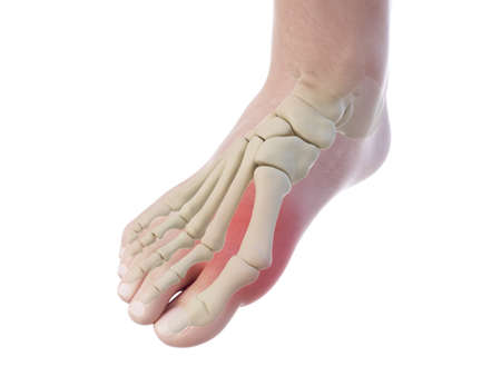 3d rendered, medically accurate illustration of a bunion Stock Photo