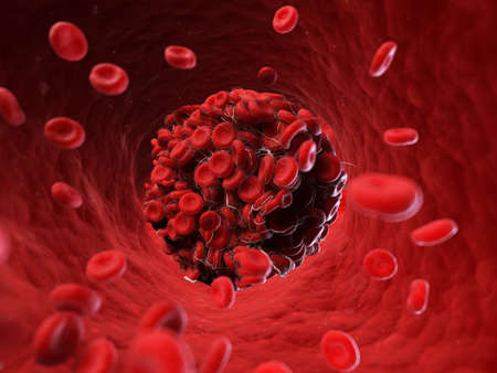 3d rendered, medically accurate illustration of a blood clot