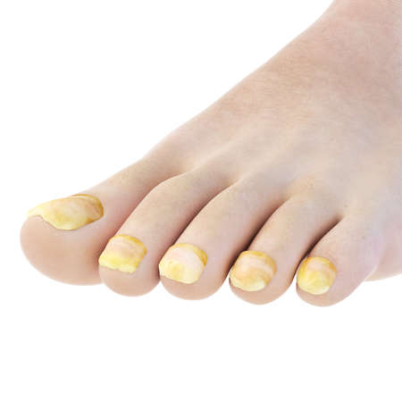 3d rendered, medically accurate illustration of toe nail fungus Stock Photo