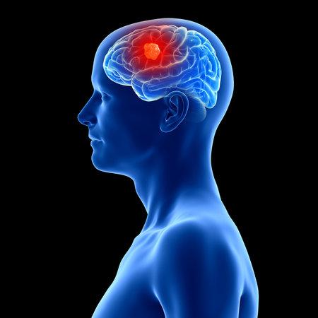 3D rendering, illustrazione accurata dal punto di vista medico di un tumore al cervello