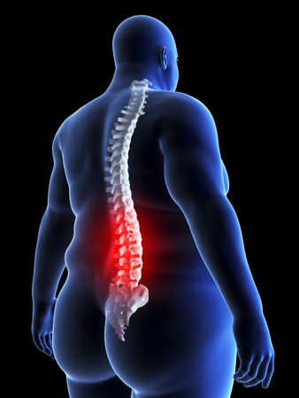 3d rendered, medically accurate illustration of an obese man having backpain
