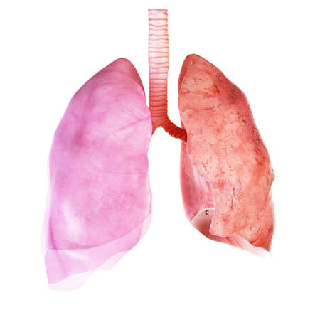 medically accurate illustration of the lung and pleura Stock Photo