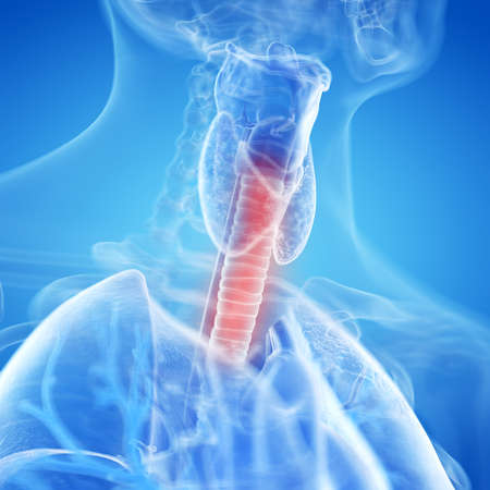 3d rendered, medically accurate illustration of an inflamed trachea