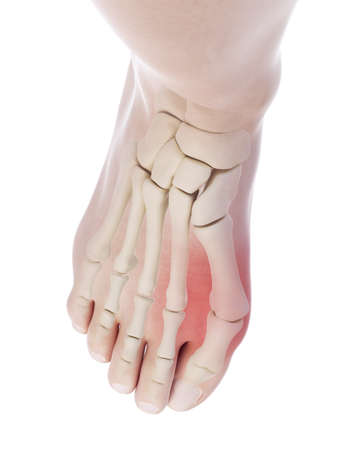3d rendered, medically accurate illustration of a bunion 写真素材