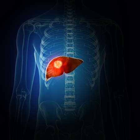 3d rendered medically accurate illustration of liver cancer