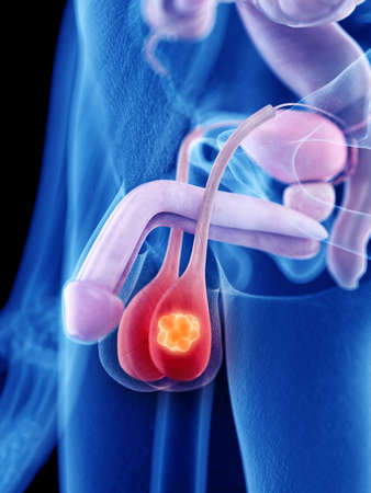 3d rendered medically accurate illustration of testicle cancer