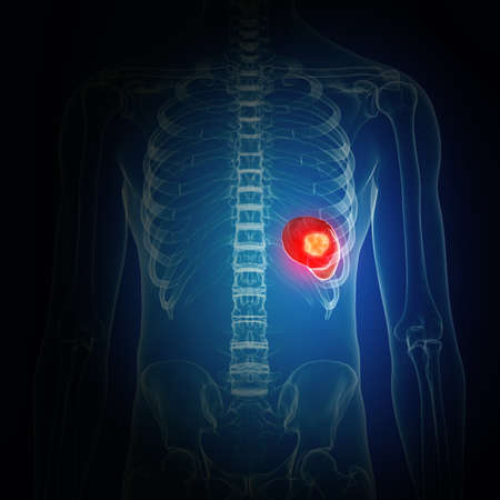 3d rendered medically accurate illustration of spleen cancer Stock Photo
