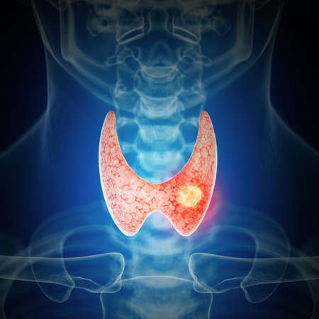 3d rendered medically accurate illustration of thyroid cancer