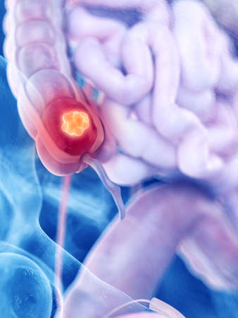 3d rendered medically accurate illustration of colon cancer Stock Photo