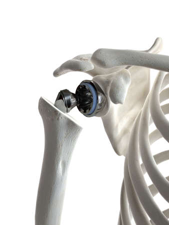 3d rendered medically accurate illustration of a shoulder replacement Reklamní fotografie