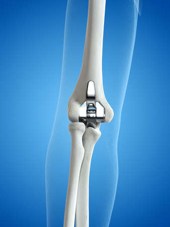 3d rendered medically accurate illustration of an elbow replacement