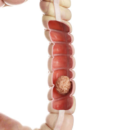 3d rendered medically accurate illustration of a colon tumor