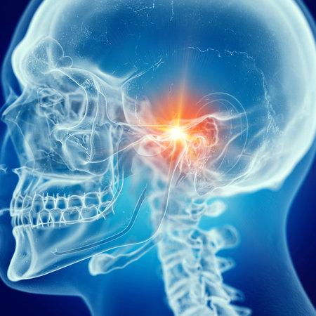 3d teruggegeven medisch nauwkeurige illustratie van een pijnlijke temporomandibulair gewricht